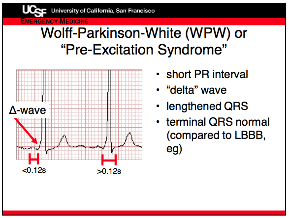 per excitation syndrome
